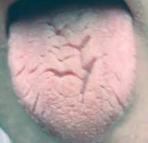 Dry Cracked Tongue