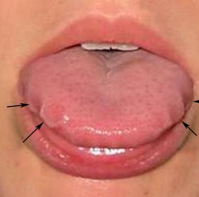 Scalloped Tongue